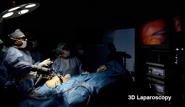 3d-video-laparoscopy2