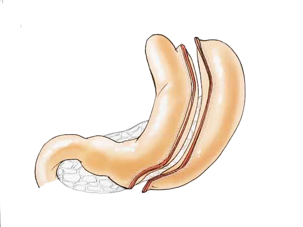 sleeve-gastrectomy